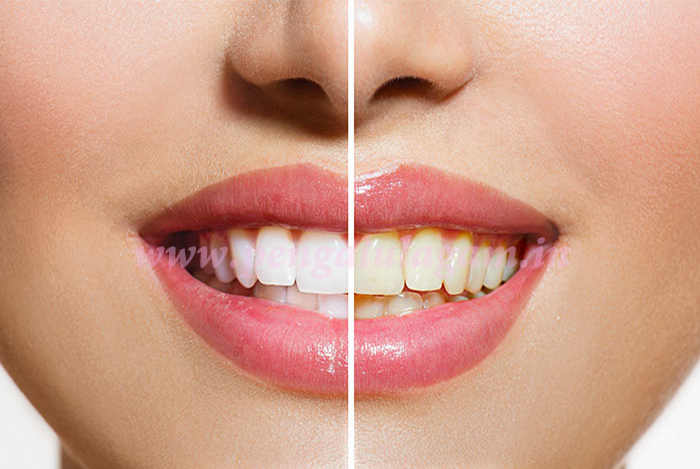 white-teeth-tips